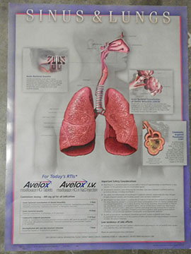 medical chart poster sinus lung